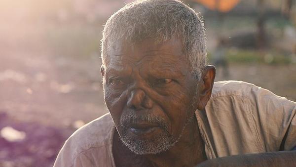 Ainda estamos longe de erradicar a lepra, apesar do que pensávamos