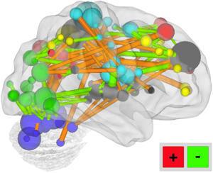 Assim, muda o nosso cérebro