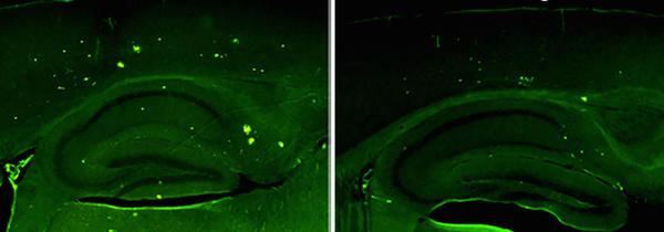Aumentar as proteínas no cérebro, reduz os sintomas de mal de Alzheimer