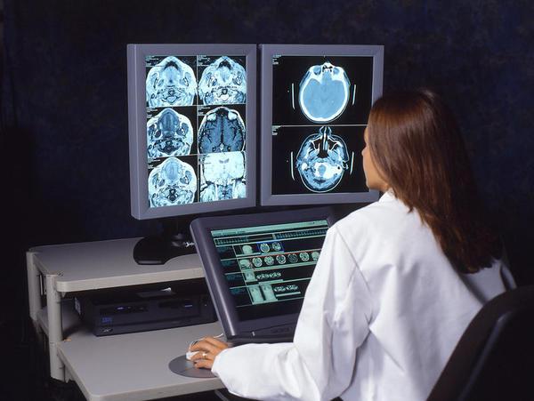 Uma tecnologia desenvolvida para medir as distâncias entre galáxias será utilizado em scanners cerebrais.