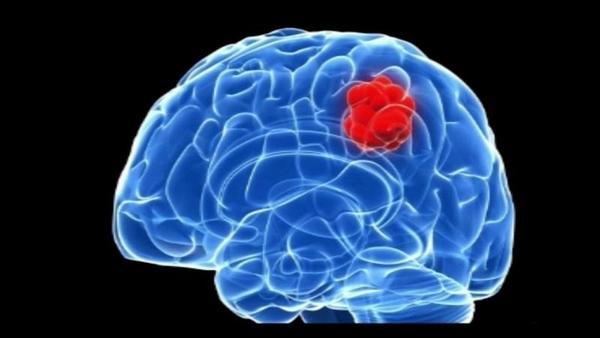 Fazem com que desapareça uma metástase cerebral de um grave tumor
