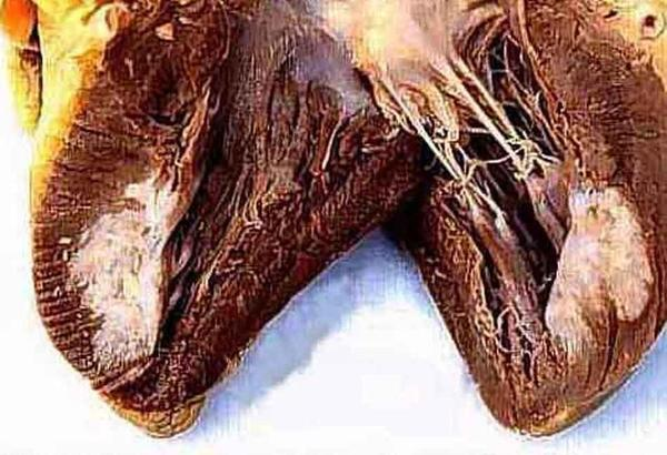 Há tumores de coração?