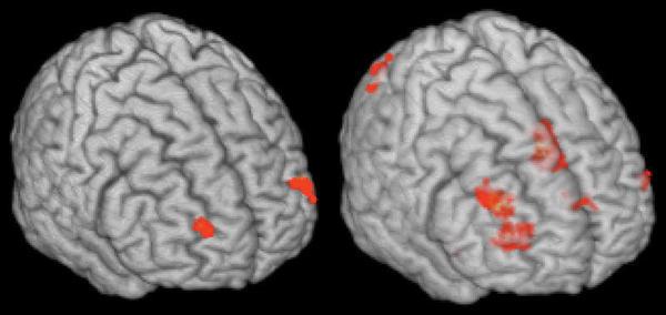 Como funciona um cérebro honrado?