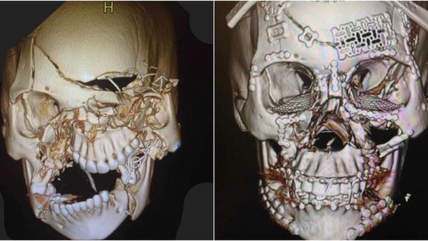Impressionante imagem de um crânio após uma reconstrução facial