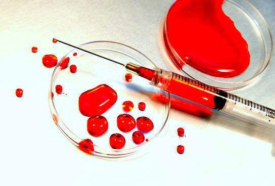 Injeção de sangue fresco