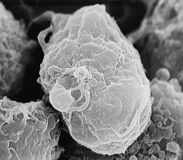 Matar células com HIV