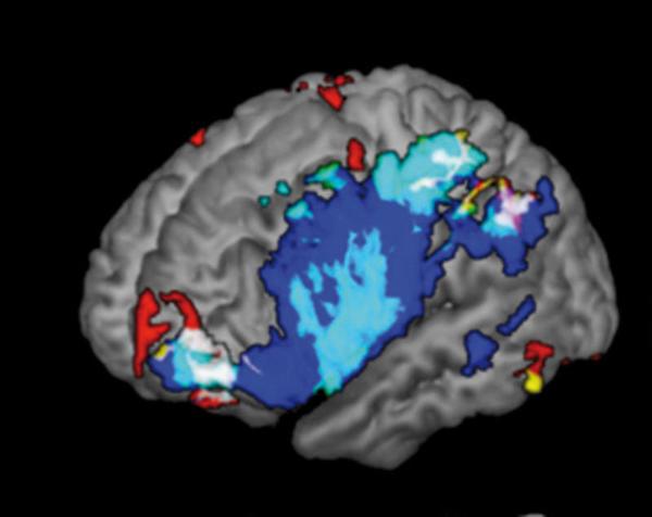 O mapa completo do cérebro